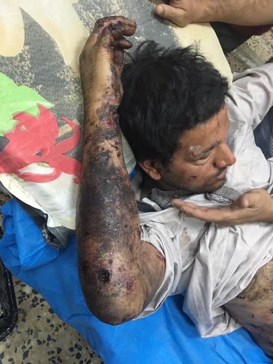 الصحفي العراقي علي جواد بعد إصابته